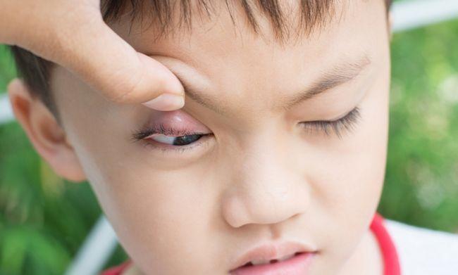 5 Помилок про лікування ячменю на оці