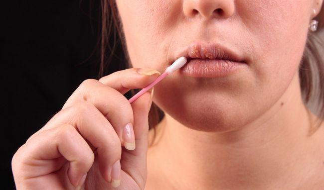 7 Народних засобів, які допомагають позбутися від герпесу на губах