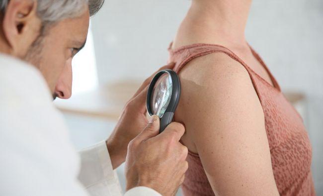 9 Міфів про рак шкіри: поширені помилки, яких не варто вірити