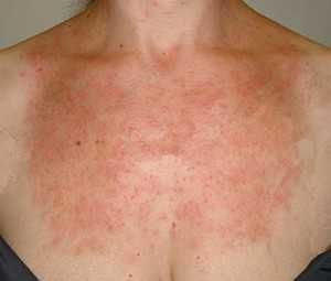 Алергія на сонце - симптоми, лікування, причини