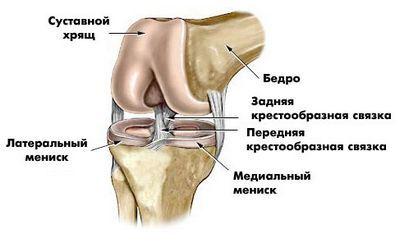 Артроз колінного суглоба: лікування артроз