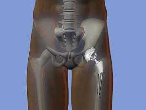 Артроз кульшового суглоба: лікування, симптоми, ступеня