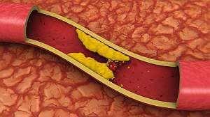 Атеросклероз судин головного мозку - лікування, симптоми, препарати
