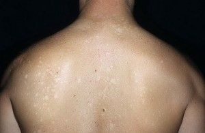 Білі плями по тілу