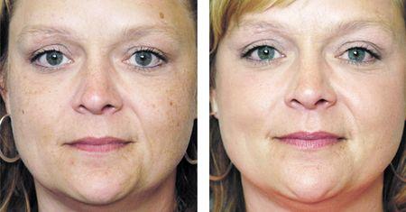 Безболісне видалення пігментних плям на обличчі
