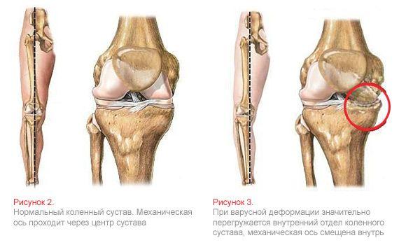 Безопераційне та хірургічне виправлення кривизни ніг