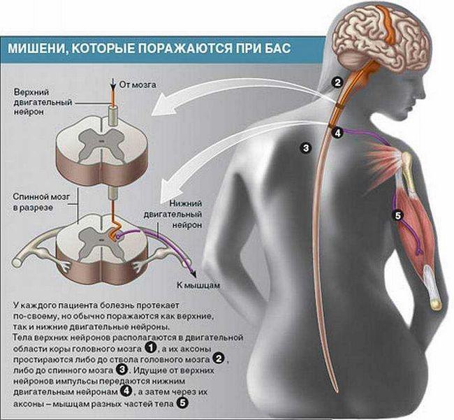 Бічний аміотрофічний склероз: симптоми, лікування, діагностика, прогноз