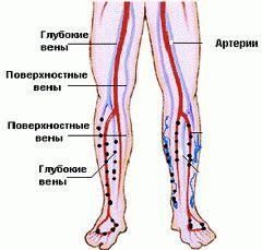 Хвороба бюргера