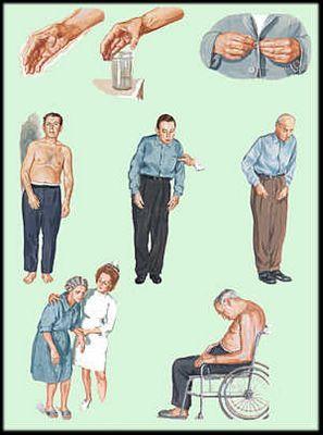 Хвороба паркінсона, причини, симптоми, лікування народними засобами