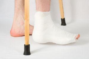 Болі в ступні біля п`яти: причини і лікування