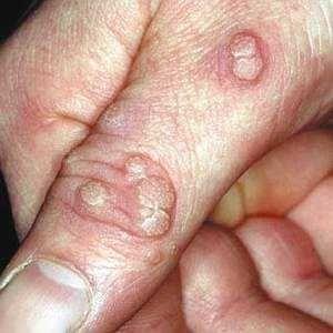 Бородавки на руках і пальцях: лікування, виведення, видалення