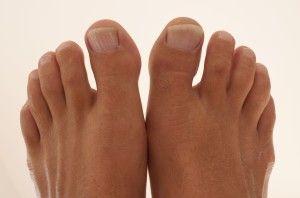 Бурсит великого пальця стопи