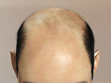 Часті питання про випаданні волосся догляд