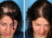 Що робити при сухій шкірі голови