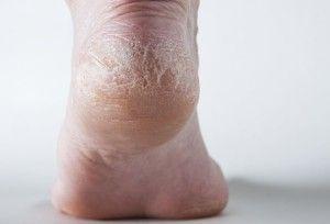 Що робити з огрубілою шкірою на п`ятах