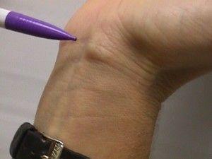 Що робити з шишкою під коліном