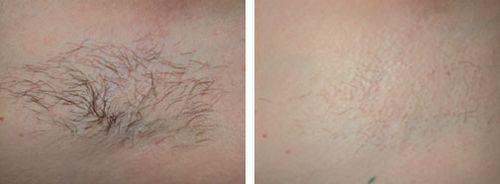 фото до і після ензимної епіляції
