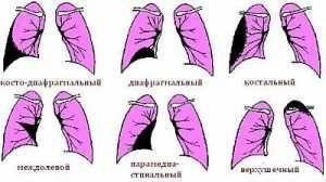 Що таке плеврит, його симптоми і лікування, чому з`являється, який прогноз