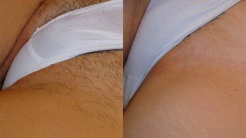 шугарінг бікіні фото до і після