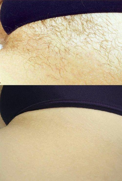 Фото до і після шугаринга