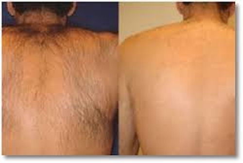 Фото до і після епіляції воском