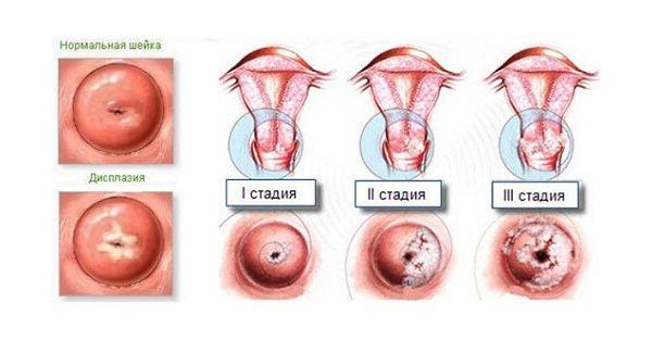Дисплазія шийки матки 1 ступеня що це