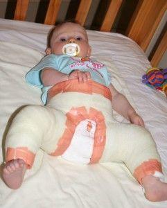 Дисплазія тазостегнових суглобів у дітей - це не вирок! Лікування патології різними методами