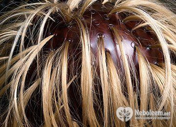 Домашнє мелірування волосся