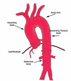 Дуга аорти