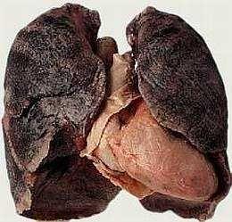 Генетичні мутації від куріння, що призводять до раку легенів, можуть відбуватися за 20 років до агресивного зростання пухлини