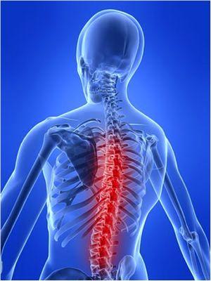 Грудної остеохондроз: лікування грудного остеохондрозу