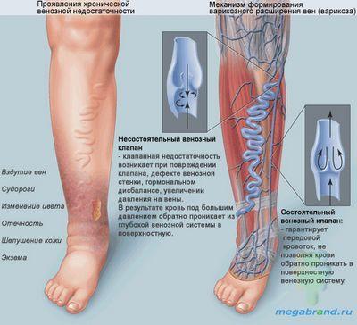 Хірургія лікування варикозного розширення вен нижніх кінцівок вена