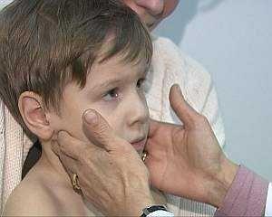 Інфекційний мононуклеоз у дітей - симптоми, лікування, ускладнення