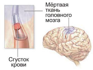 інсульт нирка