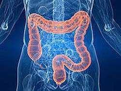 Виразковий коліт кишечника - симптоми, лікування, причини