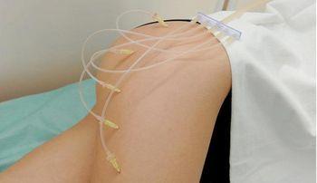 Чи ефективна озонотерапія для схуднення