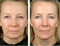 Чи ефективна желатиновая маска для обличчя від зморшок