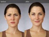 Ефективні маски з дріжджів від зморшок на обличчі