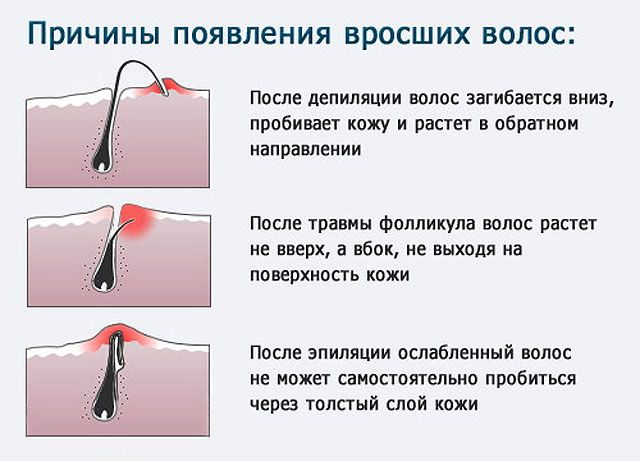 Як боротися з вростанням волосся на ногах