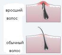 врослий волосся