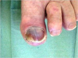 Як змінюються нігті при цукровому діабеті