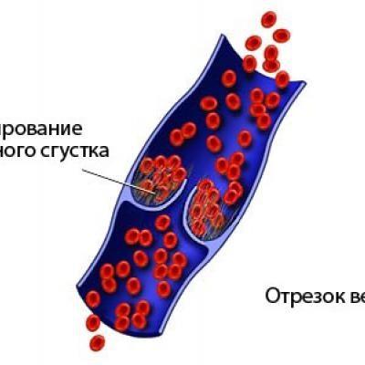 Як лікувати тромбоз глибоких вен жовчний