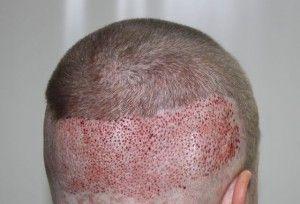 Як проводиться безшовна пересадка волосся