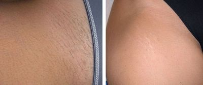 bikini area hair removal before and after