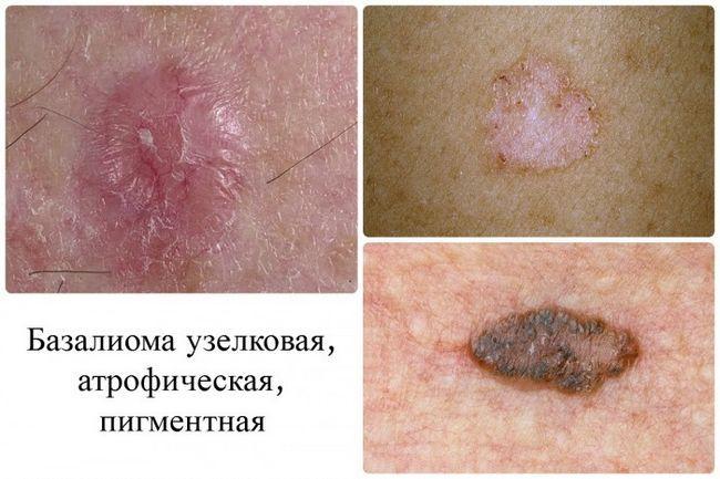 Як розпізнати рак шкіри: перші ознаки і симптоми