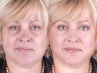 Як прибрати зморшки на обличчі і шиї
