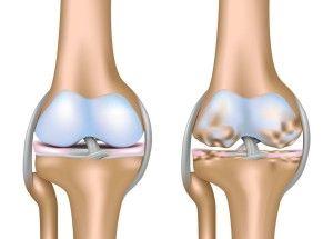 Як вилікувати артроз колінних суглобів