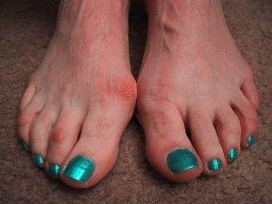 Як вилікувати вальгусную деформацію великого пальця на нозі
