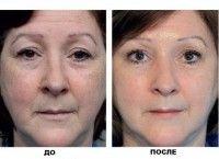 Які косметичні засоби підходять для сухої шкіри обличчя