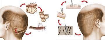 Які існують методи пересадки волосся